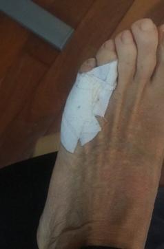Mi pie lesionado